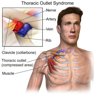 Thoracic-Outlet-Syndrome-After-Auto-Accident