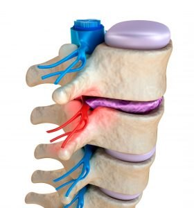 Low Back Pain Chiropractic Treatment