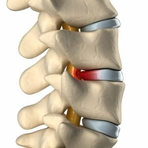 Lower Back Pain Chiropractic Boardman Hubbard Kinsman Ohio