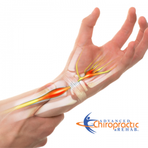 Carpal Tunnel Syndrome Treatment 2